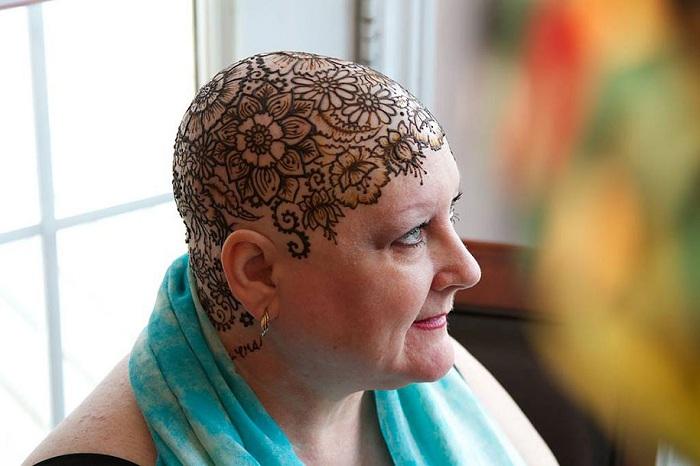 Красивые рисунок из хны, нанесенный на голову женщины, лишившейся волос.