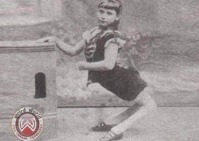 Элла Харпер - девочка с выгнутыми коленями.