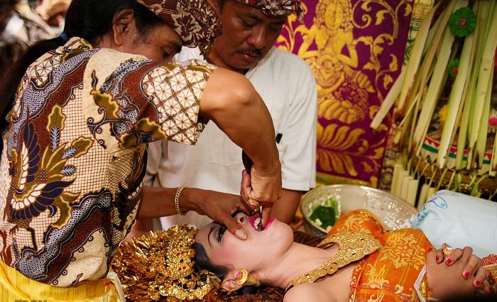 Традиция стачивания зубов на Бали. | Фото: balibudgethousing.com.
