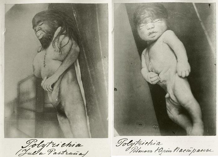 Тело Хулии Пастраны и ее новорожденного ребенка. | Фото: mtdata.ru.