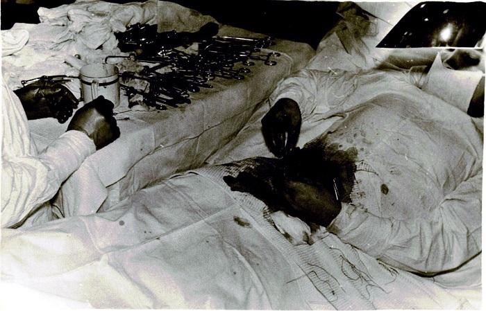 Операция по удалению аппендикса длилась 1 час 45 минут. | Фото: rarehistoricalphotos.com.