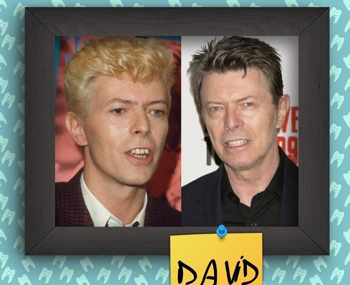 David Bowie - британский рок-певец.