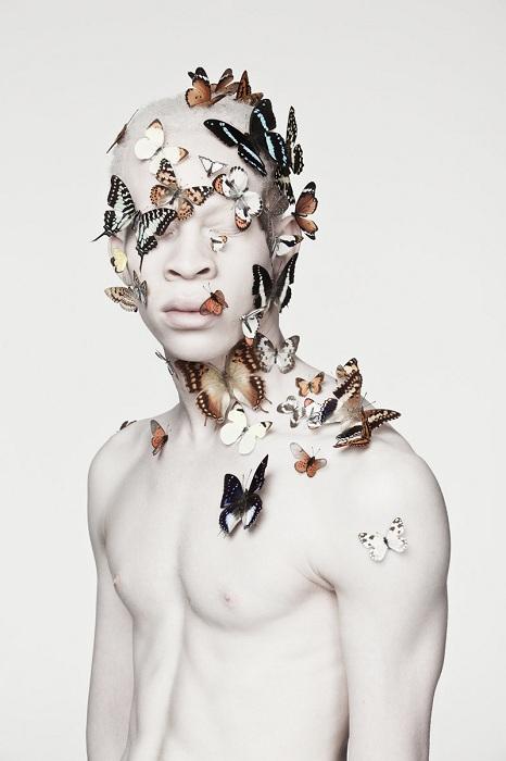 «Albus» - фотопроект, посвященный альбиносам.