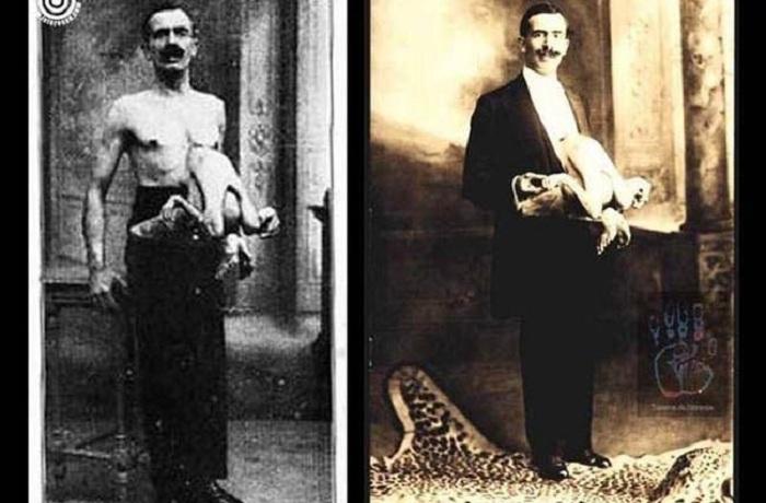 Jean Libbera - человек, живший с близнецом-паразитом.