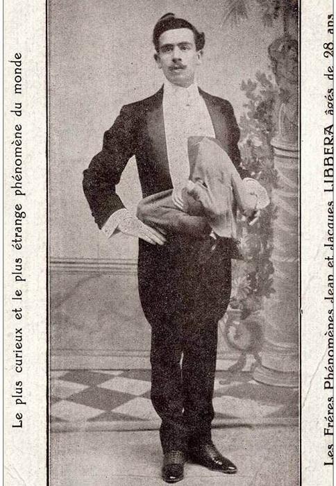Жан Либбера - уникальный жмужчина с человеком на теле.