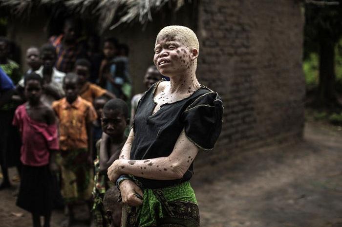 Части тела альбиносов используются в магических ритуалах.
