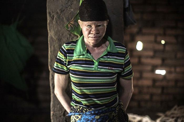 Альбиносы – коренные жители Африки убиваются для амулетов.