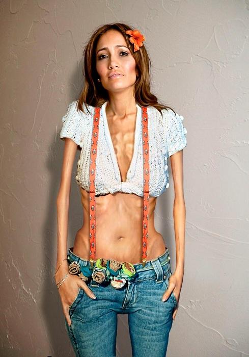 Обладательницу одних из самых аппетитных форм в Голливуде Джениффер Лопес обезобразили анорексичной худобой.