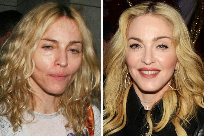 Годы не щадят даже Мадонну.