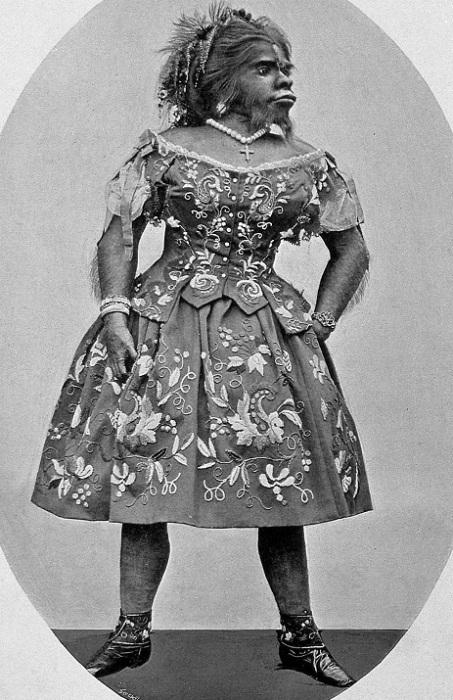 Хулия Пастрана - артистка цирка второй половины XIX века. | Фото: ru.wikipedia.org.