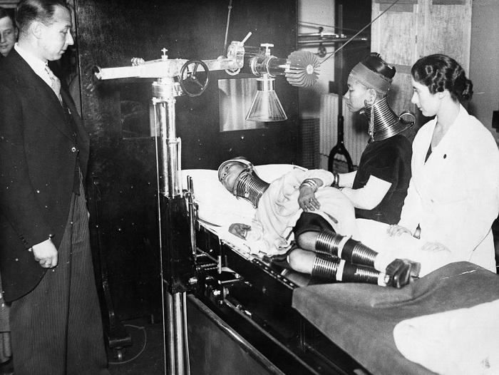 Женщина племени падаунг под наблюдением лондонских врачей.