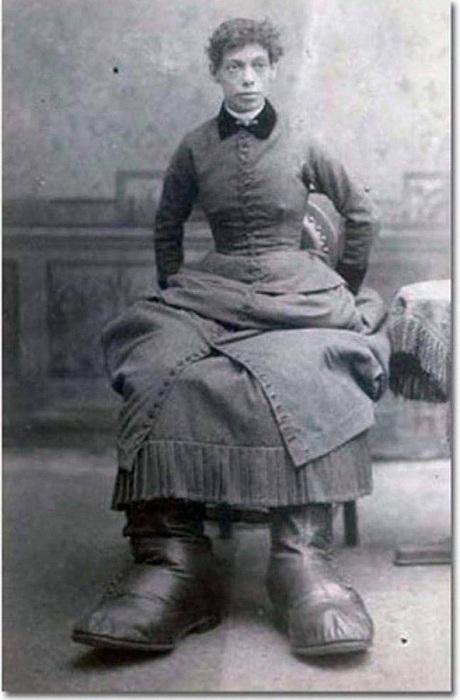 Фанни Миллс сделала знаменитой ее болезнь.