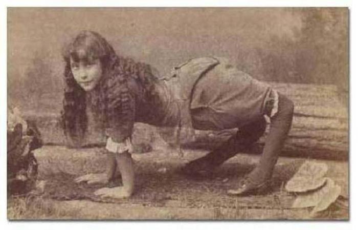 Девочка с выгнутыми ногами.