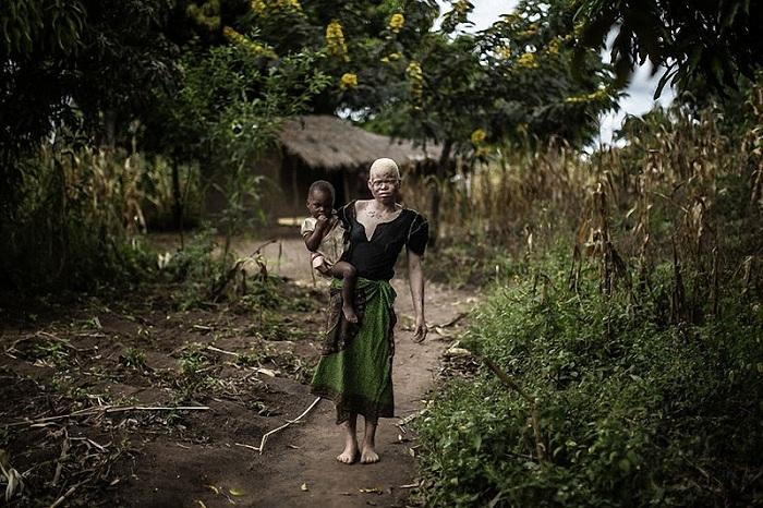 Женщина-альбинос со своим обычным темнокожим ребенком.