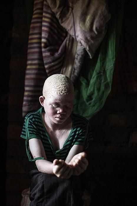 Catherine Amidu, 12-летняя девочка-альбиноска из Малави.