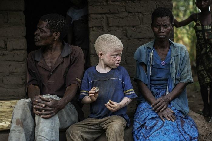 Ребенок-альбинос сидит между обычными темнокожими родителями.