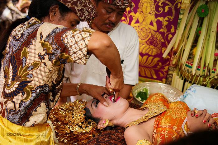 Невесте спиливают острые резцы. | Фото: balibudgethousing.com.