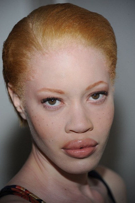 Diandra Forrest - модель-альбинос. | Фото:  api.ning.com.