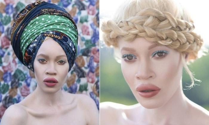 Диандра Форрест - модель-альбинос.