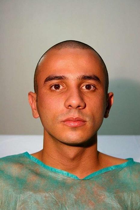 Родриго Брага - человек, решившийся сделать себе собачье лицо. | Фото: cdn2.upsocl.com.