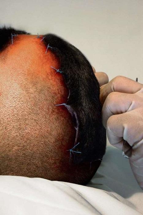 На макушке головы тоже должно быть немного собачьей шерсти. | Фото: rincondominicano.net.