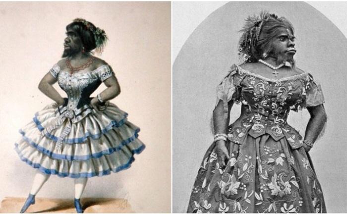 Хулия Пастрана - женщина с внешностью обезьяны. | Фото: thevintagenews.com.