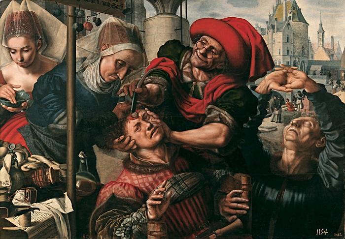 �Камни безумия�: шокирующие примеры средневекового врачевательства.