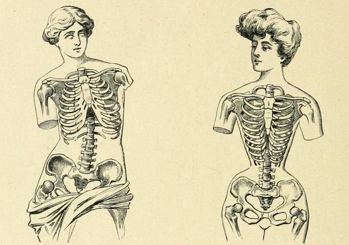 Как деформируется тело при ношении корсета.   Фото: blog.polona.pl.