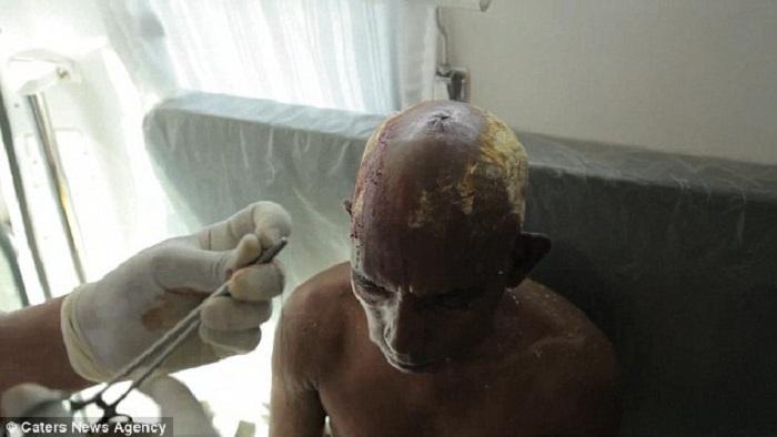 Травма, полученная вследствие разбивания кокоса об голову.