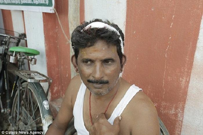 Первая помощь пострадавшему в индийском ритуале.