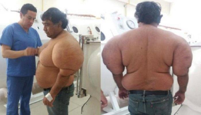 Мышцы Алехандро Рамоса Мартинеса деформировались из-за декомпрессионной болезни. | Фото: odditycentral.com.