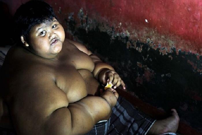 Самый толстый мальчик в мире ест по пять раз в день.