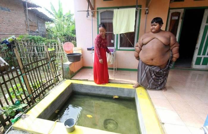 Арья Пермана - самый толстый мальчик в мире.
