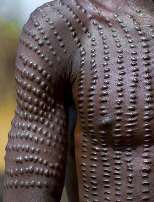 Шрамирование - часть культуры эфиопов. | Фото: smolbattle.ru.
