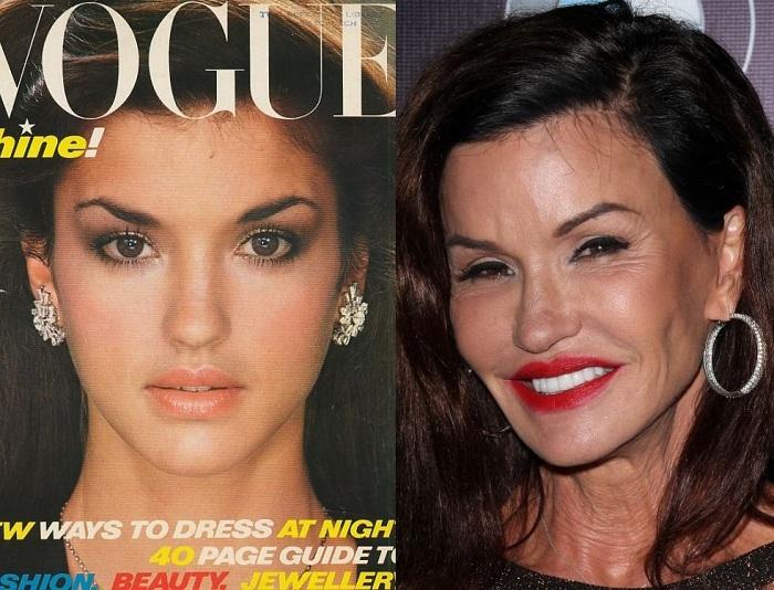 Как высказалась супермодель Janice Dickinson: «Во мне все фальшивка... Но выгляжу я превосходно!».