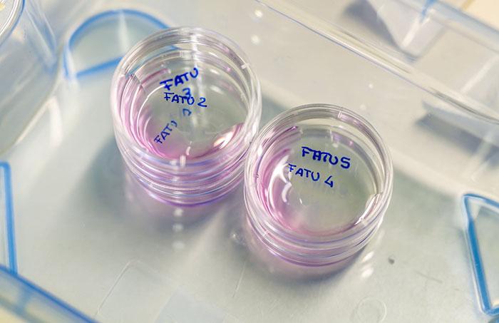 В августе у Найджин и Фату извлекли яйцеклетки.