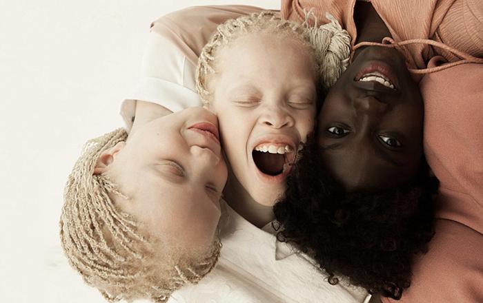 Близнецы Лара и Мара со своей старшей сестрой Шейлой. Фото: Vinicius Terranova.