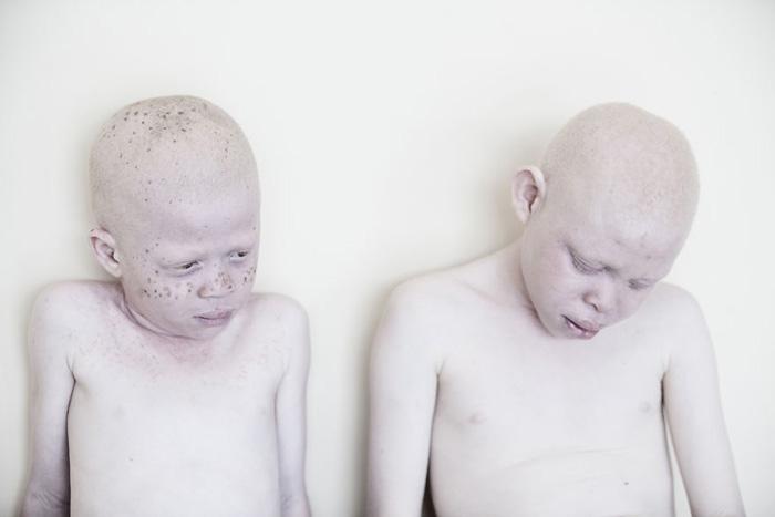 Дети-альбиносы в Танзании редко когда вырастают в взрослых - их подстерегает множество проблем и опасностей. Фото: Marinka Masseus.
