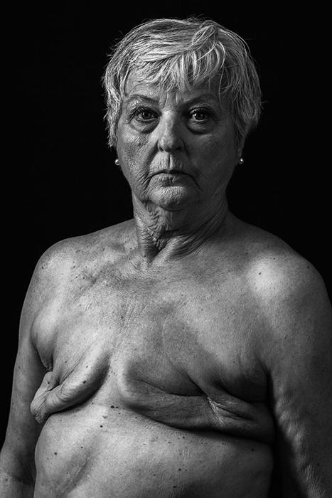 «Breast Cancer». Фото: Huey Kidd.