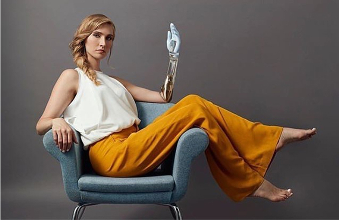 Келли Нокс с протезом, созданным из прозрачной смолы, золотых деталей и пульсирующего в такт сердцебиения диода в районе запястья.
