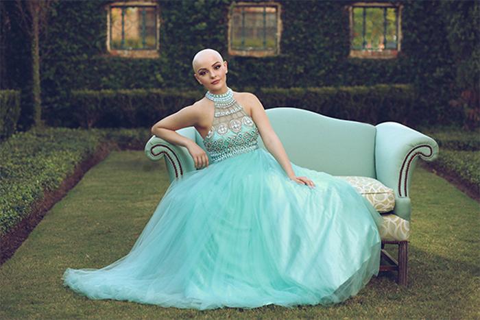 Андреа решилась позировать без парика, чтобы показать другим больным раком, что можно быть красивой вне зависимости от того, как выглядишь.