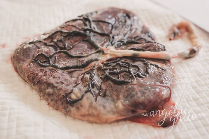 Плацента.  Фото: Angela Gallo.