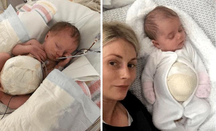 Малышка Азалия родилась в внутренними органами наружу.