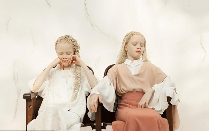 Уникальная красота девочек-альбиносов. Фото: Vinicius Terranova.
