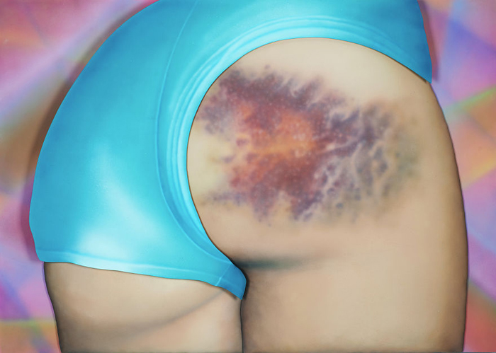 *В этом синяке более 12 цветов и он размером с голову* - рассказывает художница.