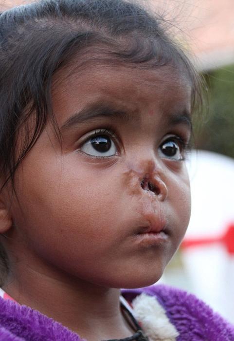 Второй приемной дочерью Кристен стала малышка Дурга.
