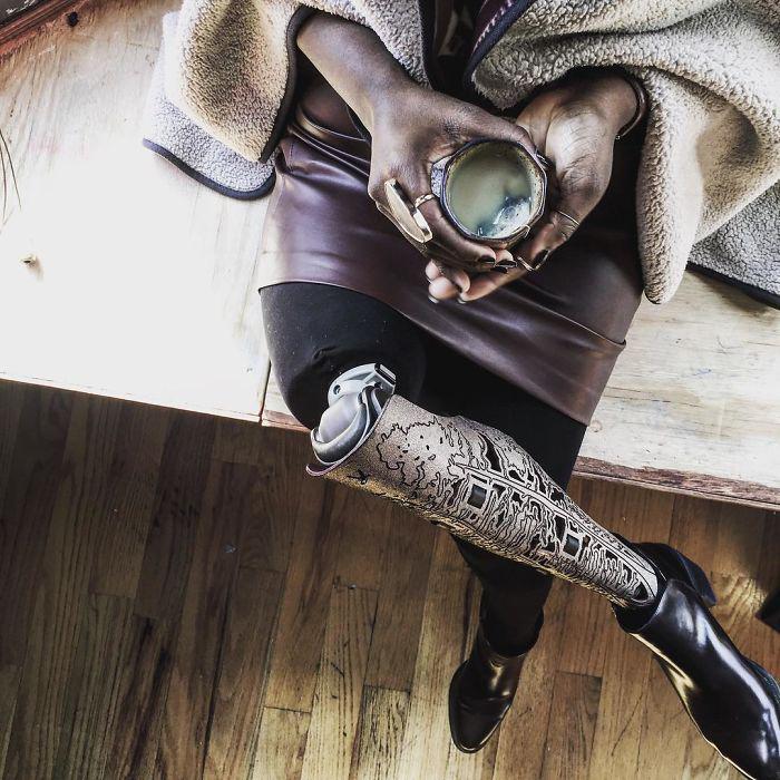 В результате экспериментального лечения девушке удалось победить рак, но ей пришлось ампутировать правую ногу. Instagram caxmee.