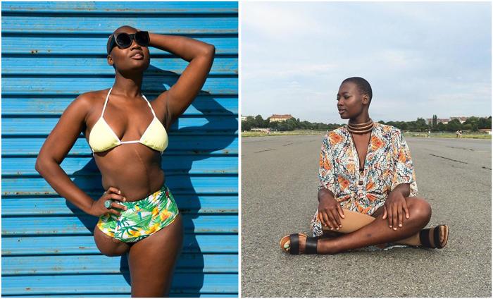 Темнокожая девушка, передвигающаяся на костылях, стала моделью.