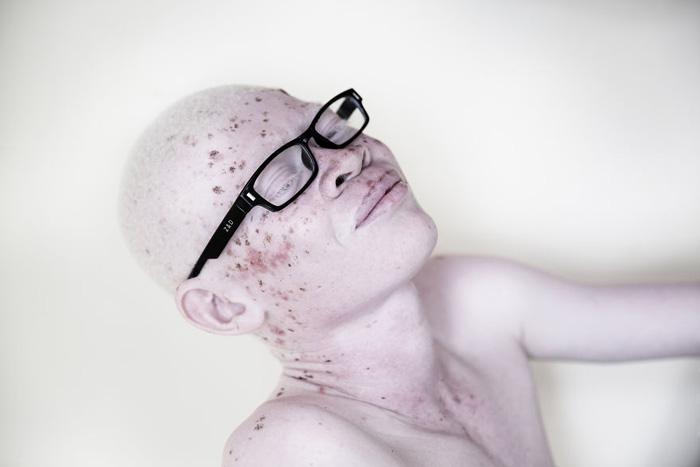 Альбиносам трудно выживать в Африке из-за агрессивного солнечного света.  Фото: Marinka Masseus.