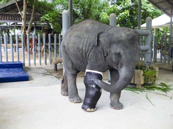 С тех пор, как Моше был сделан протез, она находится под наблюдением врачей.